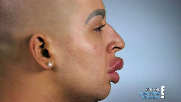 Meet The MAN Who's Lips Are Leaking From Injections- Attempting to Look Like Kim K
