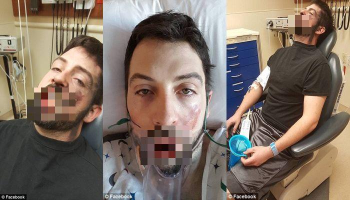 Idaho Man Loses 7 TEETH After Vape Blows Up In His Face [PHOTOS]