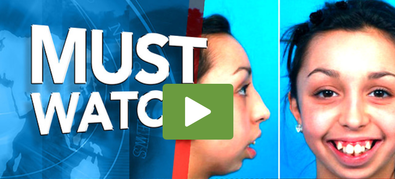 Girl Was Teased All Her Life Finally Got Surgery, It's Hard To Believe It's The Same Girl [WATCH]