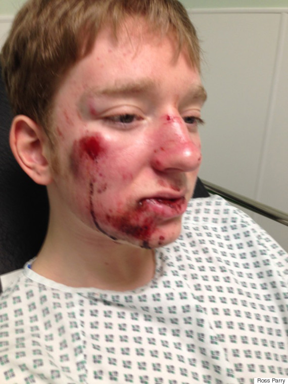 A teenage cyclist was left covered in blood at the side of a road after a motorist drove off following a collision in Sheffield's early morning rush hour. Now his angry mum has issued a photograph of the injured youngster in a bid to encourage witnesses to come forward.