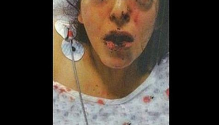 Muslim Family Beats Deaf Girl For Converting To Christianity, Police Give Her 5 Words…