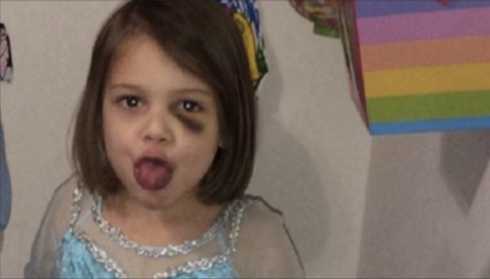Grandmother Makes A Shocking Discovery About What's Been Happening To 4-Year-Old Girl