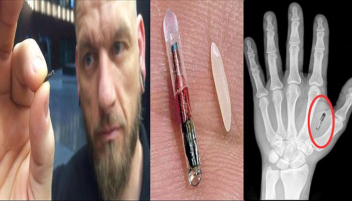A Company Has Started Implanting Microchips In Its Employees