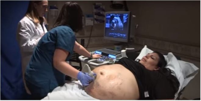Pregnant Mom's Belly Covered In Bruises, But An Ultrasound Explained Everything.