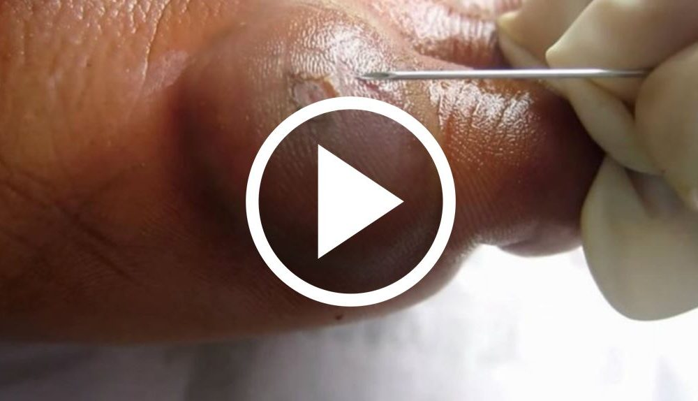 When He Ruptured This Huge Blister, He Had No Idea This Would Pop Out [WATCH]