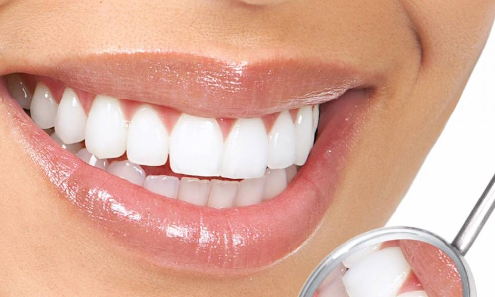 Here Are Some of the Easiest Ways To Whiten Your Teeth Without Chemicals