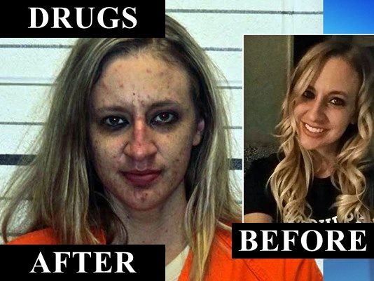 Drugs-Before-After