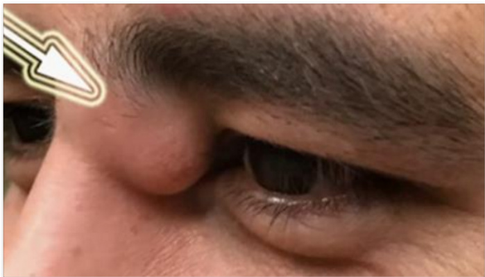Lump On Man's Eye Gets Bigger, He Takes Drastic Action [VIDEO]