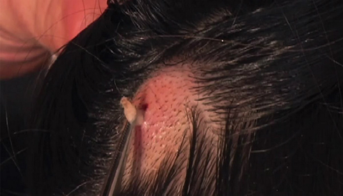 She Had An Itchy Scalp. When They Discovered Why, I Was Appalled [VIDEO]