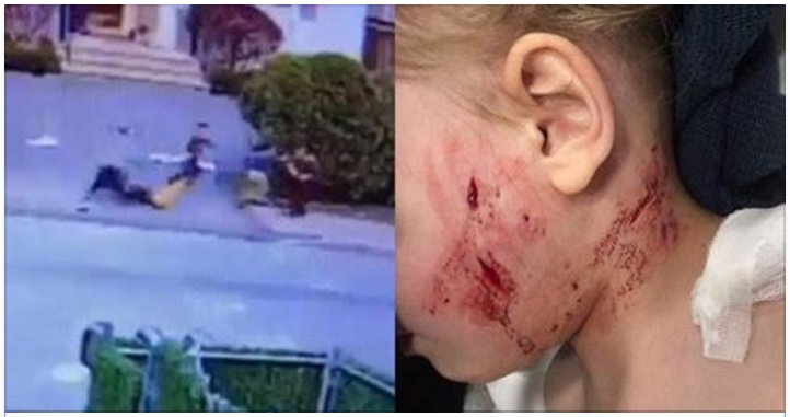 Toddler Aged 3-Years-Old Is Viciously Attacked In New York