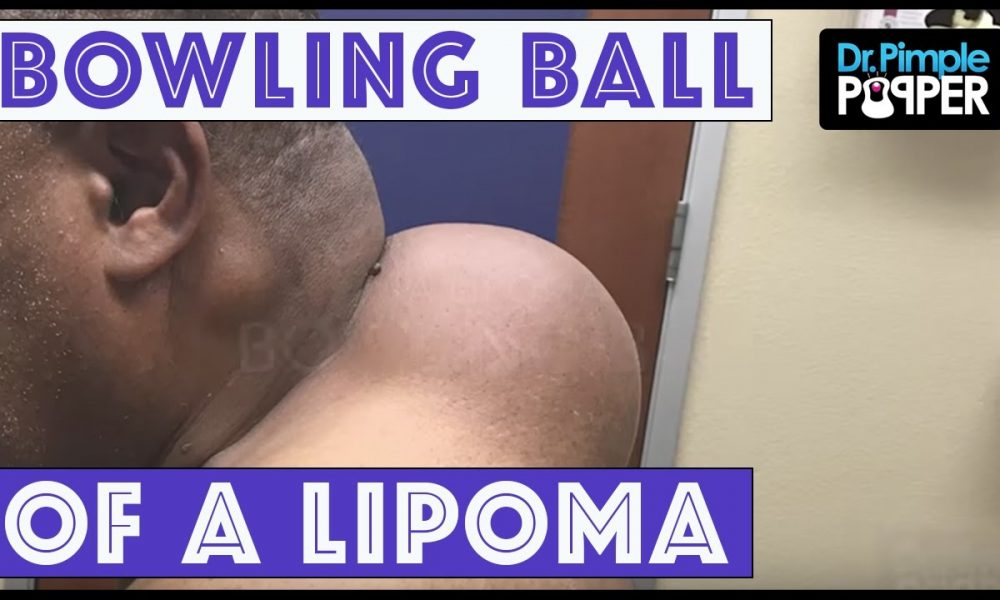 Shocking Video of the Removal of the Bowling Ball Cyst [GRAPHIC VIDEO]