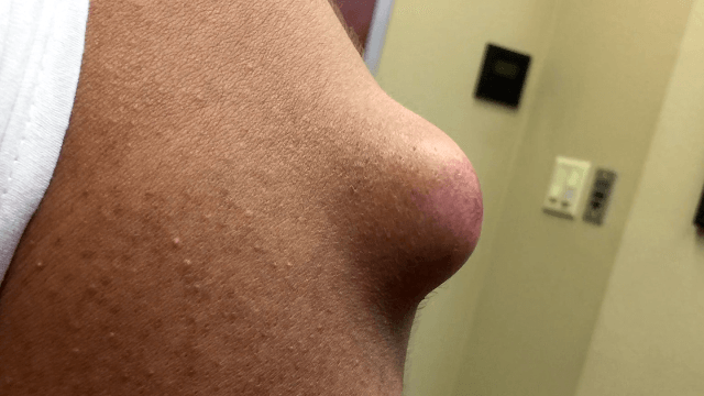 Removing A Cyst The Size Of A Doorknob [WARNING: GRAPHIC VIDEO]