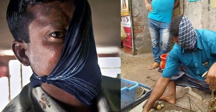 20 Years After A Tiger Attack, He Finally Revealed His Face [PHOTOS]