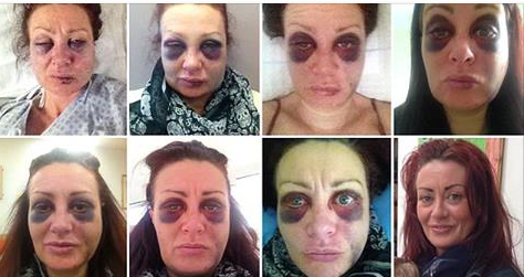 Domestic Violence Victim Shares Daily Selfies Of Her Abuse And Recovery [PHOTOS]