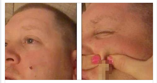 Loving Wife Pops Husbands Lump — Is Disgusted By What Shoots Out [VIDEO]
