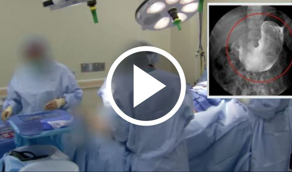 Large 'Mass' Found In Man's Body, Doctors Embarrassed Once They Remove It [WATCH]