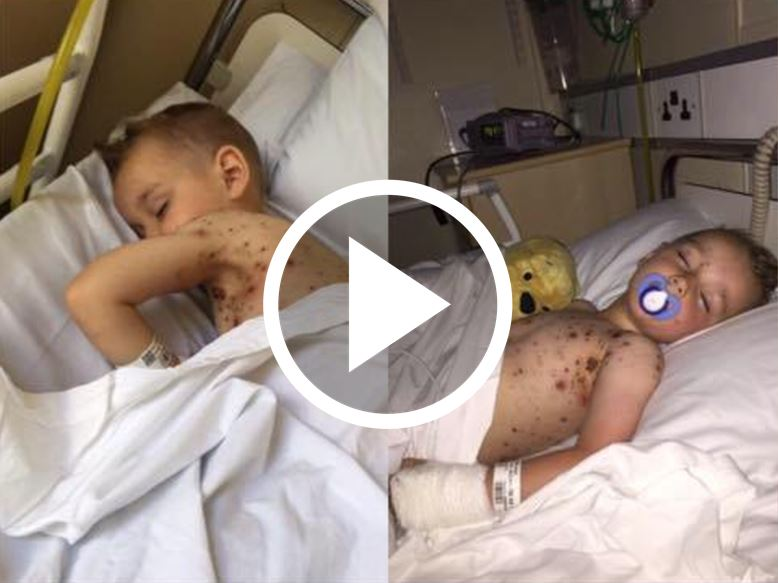 Mom Warns Others After Boy Gets Blood Poisoning From Common Medication [VIDEO]