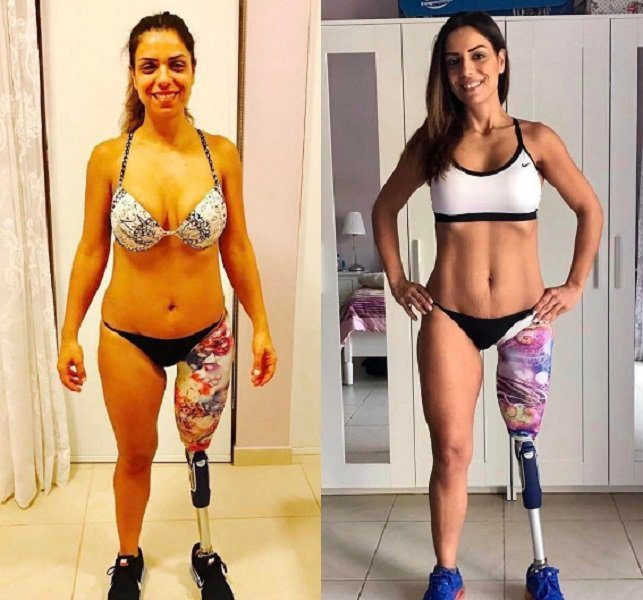 From Amputee To Bodybuilder, Just Look At Her Now [PHOTOS]
