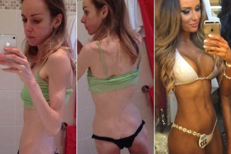 Beautiful Before And After Photos Of Women That Have Beaten Anorexia