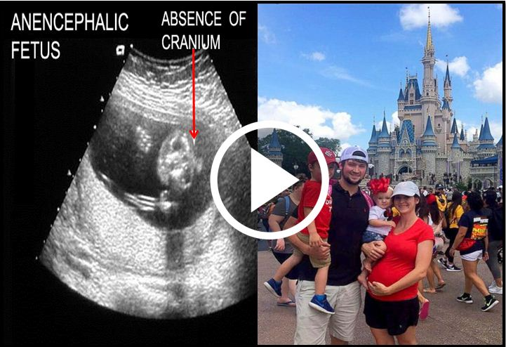 Doctors Tell Mom Baby Will Not Survive Outside The Womb, She Decides To Give Birth Anyway [VIDEO]