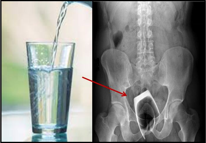 Drinking Glass Ends Up In Man's Behind, Then Things Take A Horrific Turn