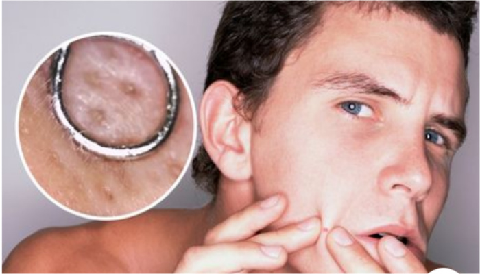 Pimple Popping Under Microscope Is The Latest Disgusting Obsession, Can You Handle It? [VIDEO]