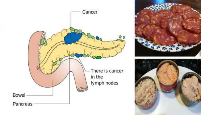 11 Cancer-Causing Foods You Should Never Consume Again