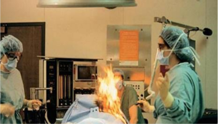 Woman Farts During Surgery And Catches Fire, Then Things Take An Even Worse Turn [VIDEO]