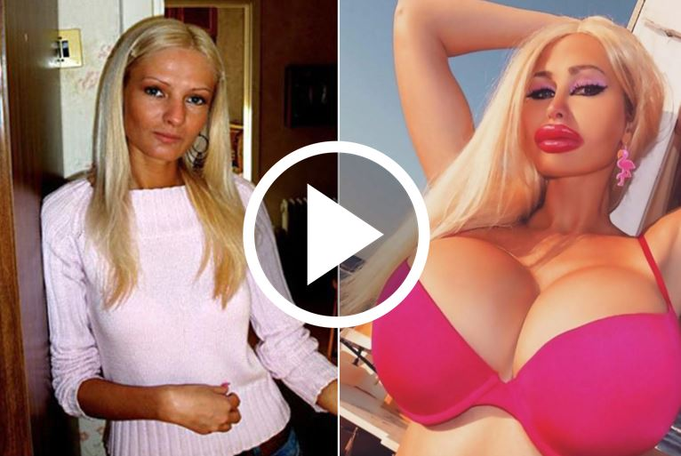 This Is How She Looked Before Spending $45,000 On Surgery. Now See Her After Photos [WATCH]