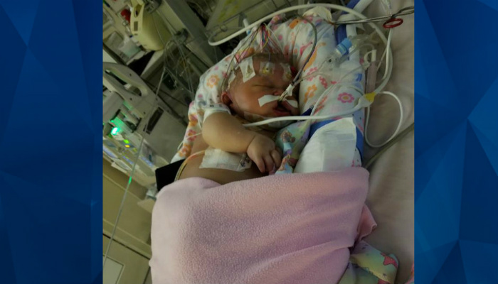 Infant Baby Born Healthy Dies Just 2 Weeks Later After Someone With Herpes Kissed Her