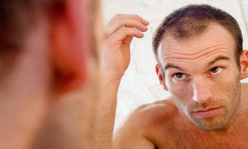 Baldness may be ended with discovery of new hair cell growth mechanism