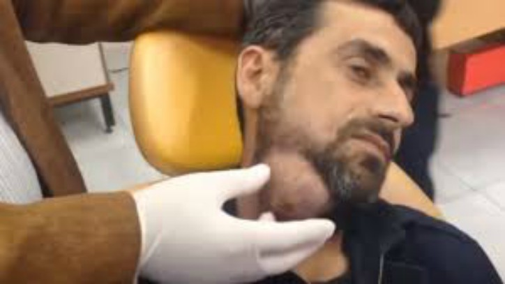 Man With Huge Neck Cyst Gets It Drained [GRAPHIC VIDEO]