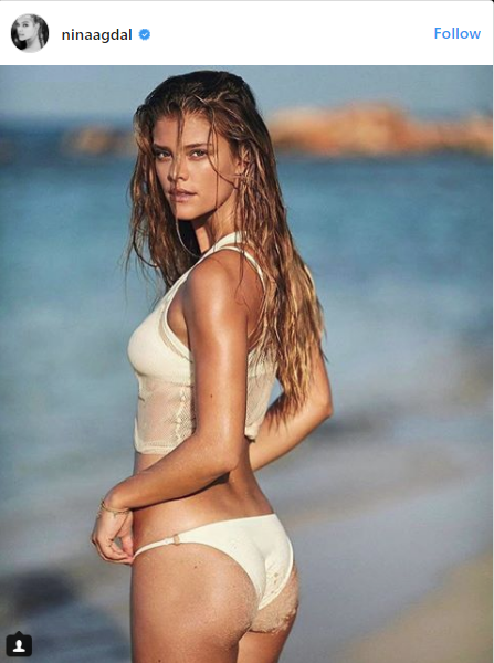 Will TrumpCare Cover These Models For Pre-Existing Hotness? [PHOTOS]