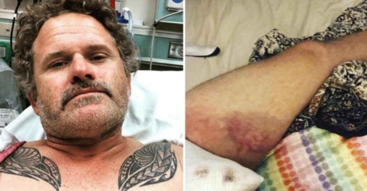 LOL: BLM Activist Loses One of His Testicles After Being Shot with Rubber Bullets During Riots